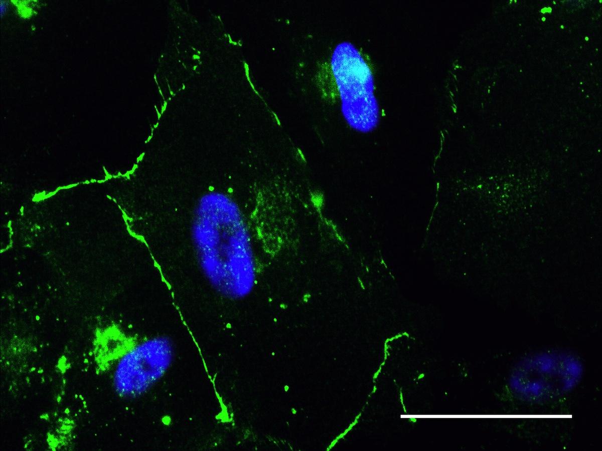 Study Shows Amniotic Fluid Stem Cells Heart Cells Pass