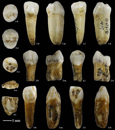 teeth size of neanderthals