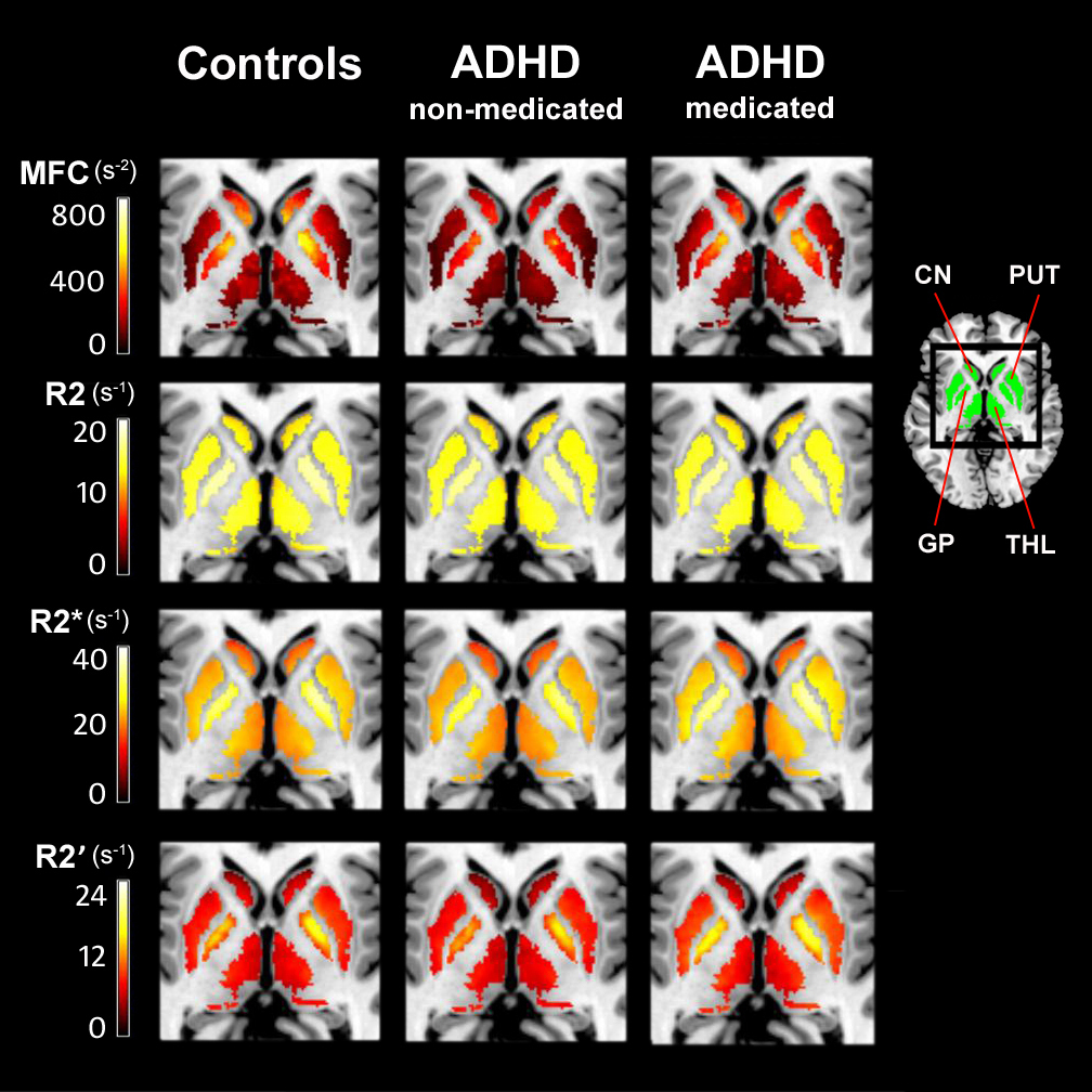 MRI Technique Reveals Low Brain Iron In ADHD Patients