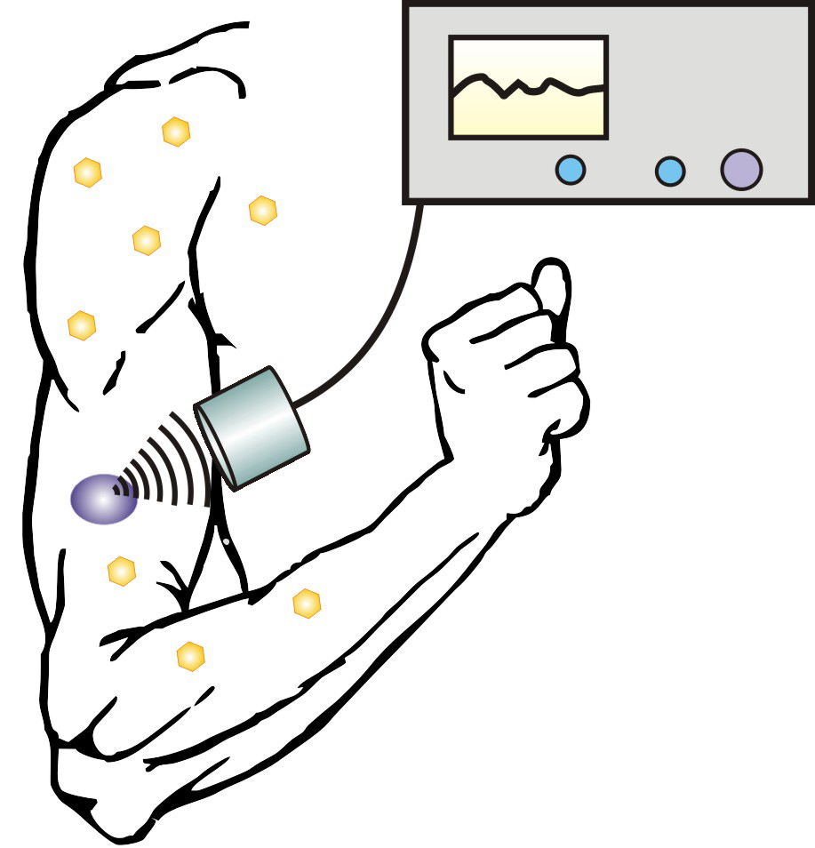 ultrasound  nanoparticles may help diabetics avoid the needle