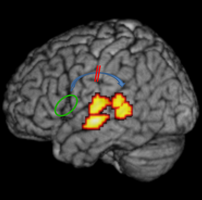 dyslexia may be due to faulty brain wiring study says update rh medicalxpress com wiring the brain twitter wiring of the brain refers to