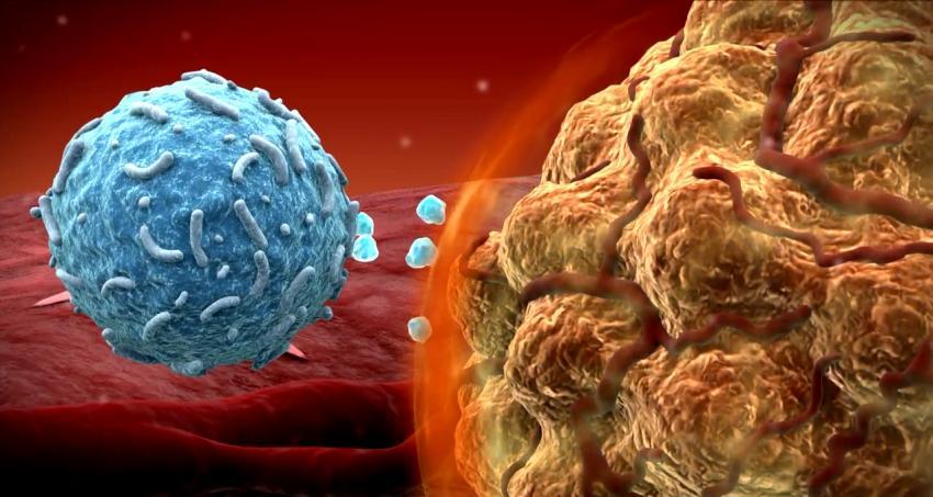 Fda Approves Game Changing Drug For Melanoma