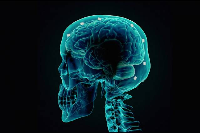New Approach Could Kill Tumor Cells In The Brain More