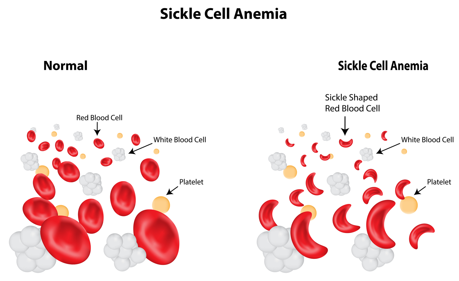 One Day Science May Cure Sickle Cell Anaemia White Blood Diagram For Kids To Tell Cells Credit Joshya