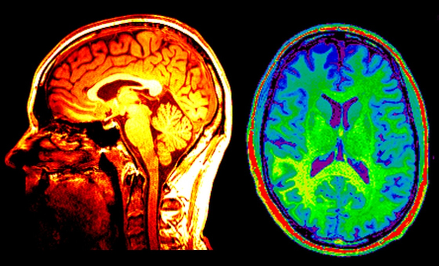 the use of brain scans in medicine and neuroscience Pain neuroscience education (pne), also known as therapeutic neuroscience education (tne), consists of educational sessions for patients describing in detail the neurobiology and neurophysiology of pain and pain processing by the nervous system (louw, diener, butler and puentedura 2011.