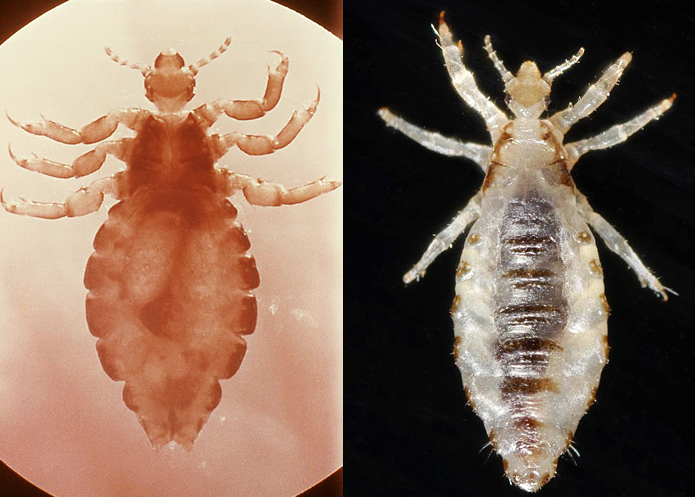 One species two outcomes team seeks source of body louse pathology ccuart Gallery
