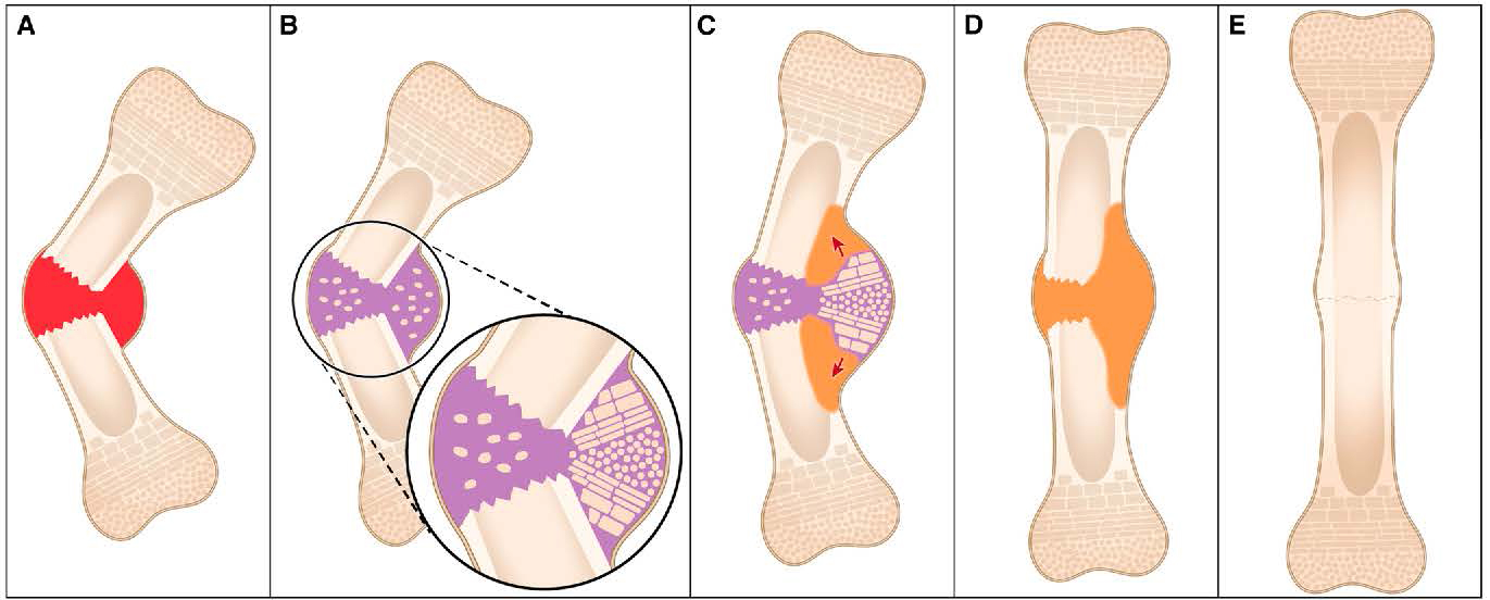 Discovery of how newborn mice repair bone fractures could improve ...