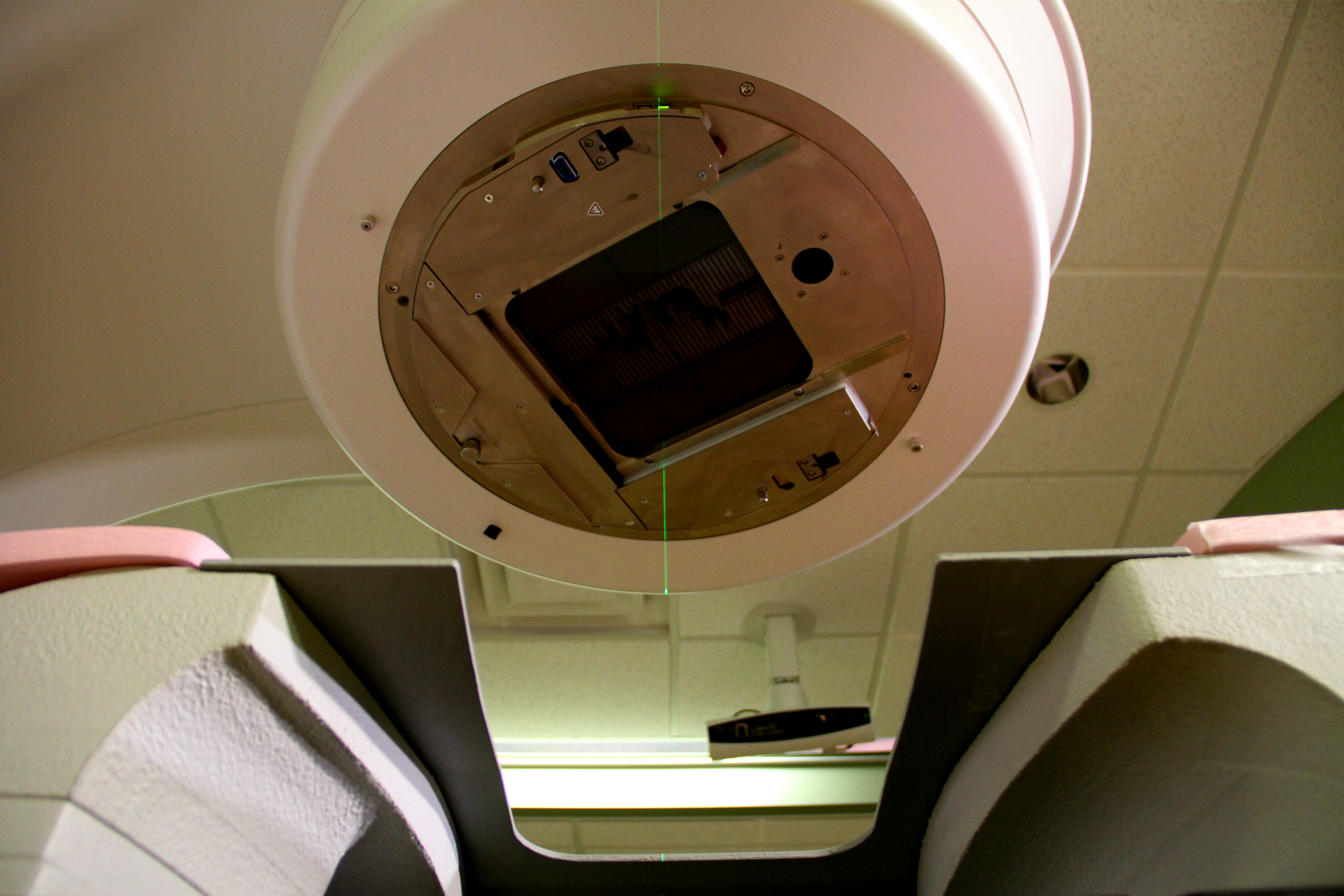 Pictures of and radiation chest wall inflammation and radiation - Experts Say Body Position In Breast Cancer Radiation Treatment Matters
