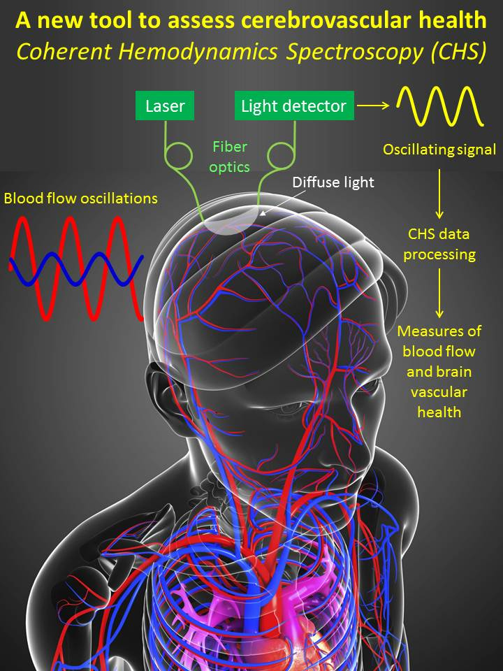 A new way to diagnose brain damage from concussions strokes and a new way to diagnose brain damage from concussions strokes and dementia ccuart Gallery