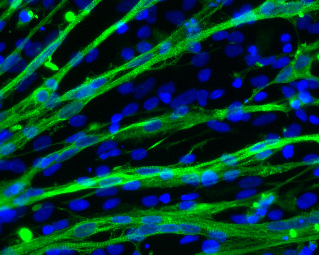 A New Way To Make Muscle Cells From Human Stem Cells