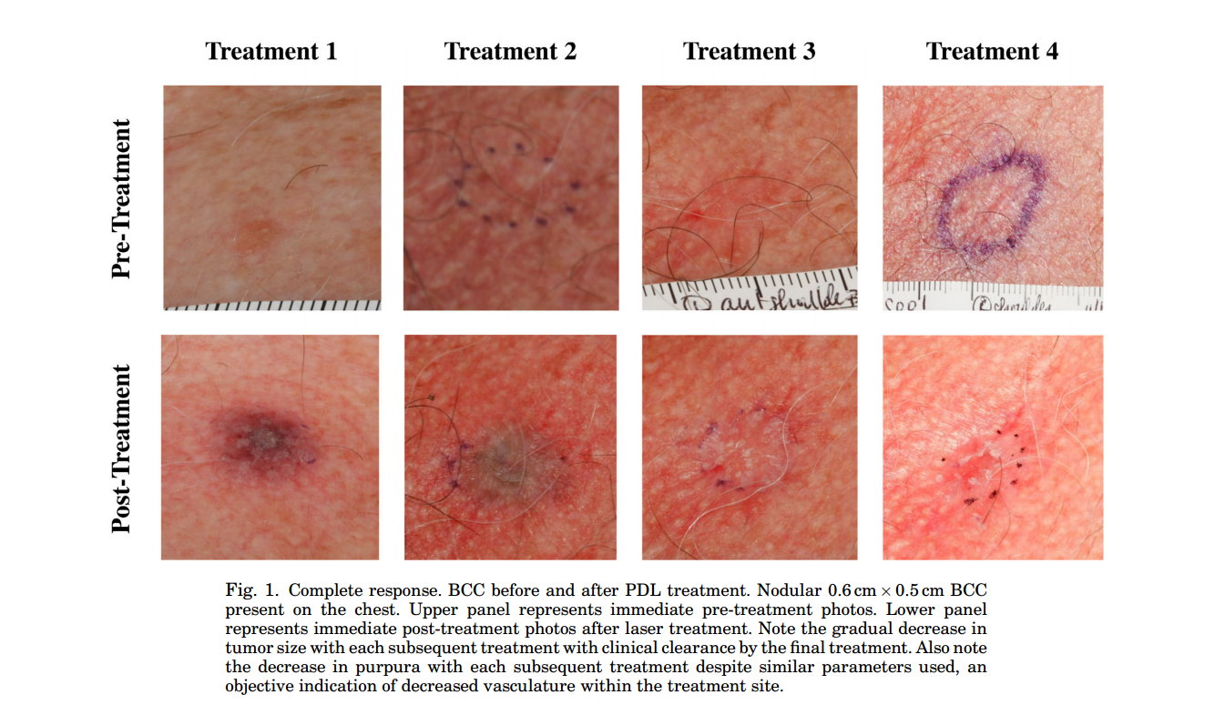 non-invasive treatment of basal cell carcinoma, Human Body