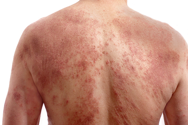 Convincing psoriasis sufferers to seek treatment