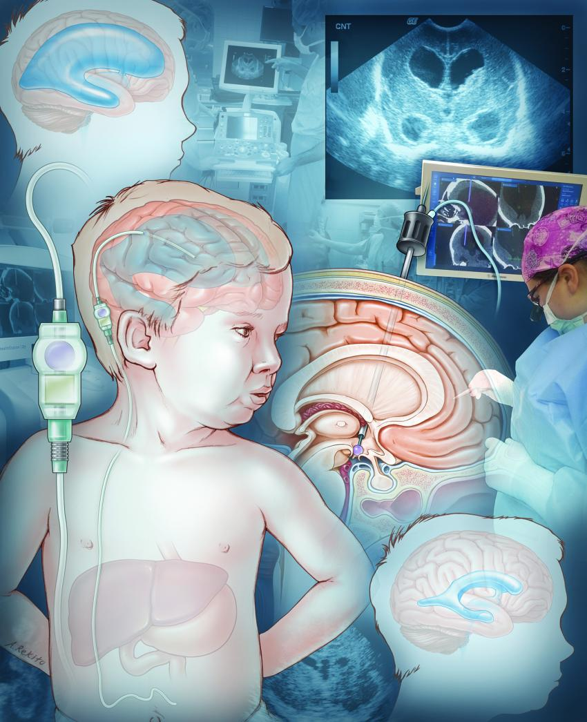 pediatrics publishes guidelines for the treatment of pediatric jns pediatrics publishes guidelines for the treatment of pediatric hydrocephalus