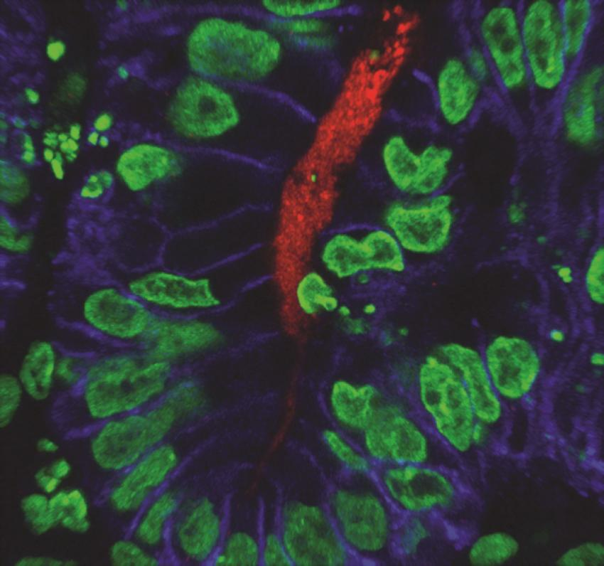 Scientists generate first human stomach tissue in lab with stem cells