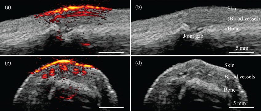 Handheld Probe Produces Detailed Images Of Blood Vessels Other