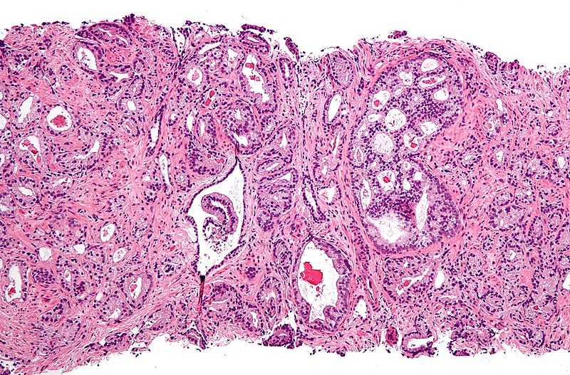 circumcision could prevent prostate cancer if it\u0027s performedmicrograph showing prostatic acinar adenocarcinoma (the most common form of prostate cancer) credit wikipedia