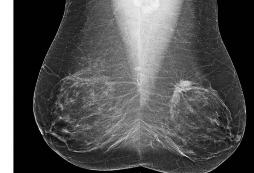 Risk-based screening misses breast cancers in women in ...