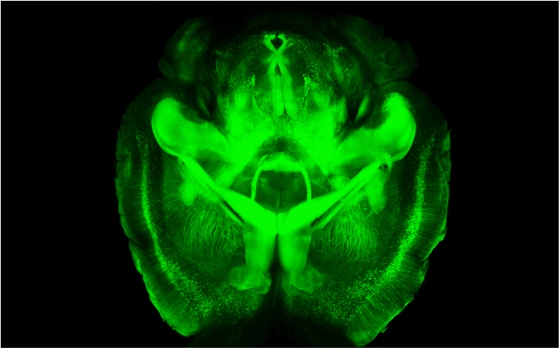 Seeing the inner workings of the brain made easier by new technique