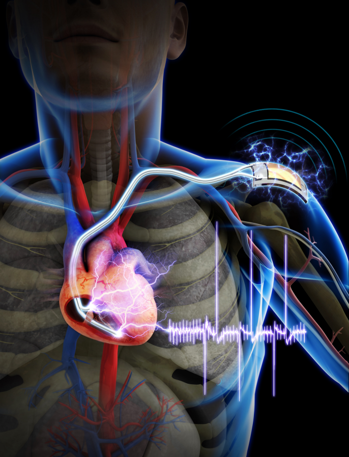 First demonstration of a self-powered cardiac pacemaker