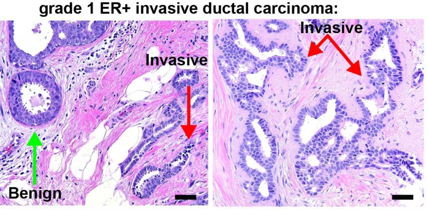 invasive carcinoma cancer Breast