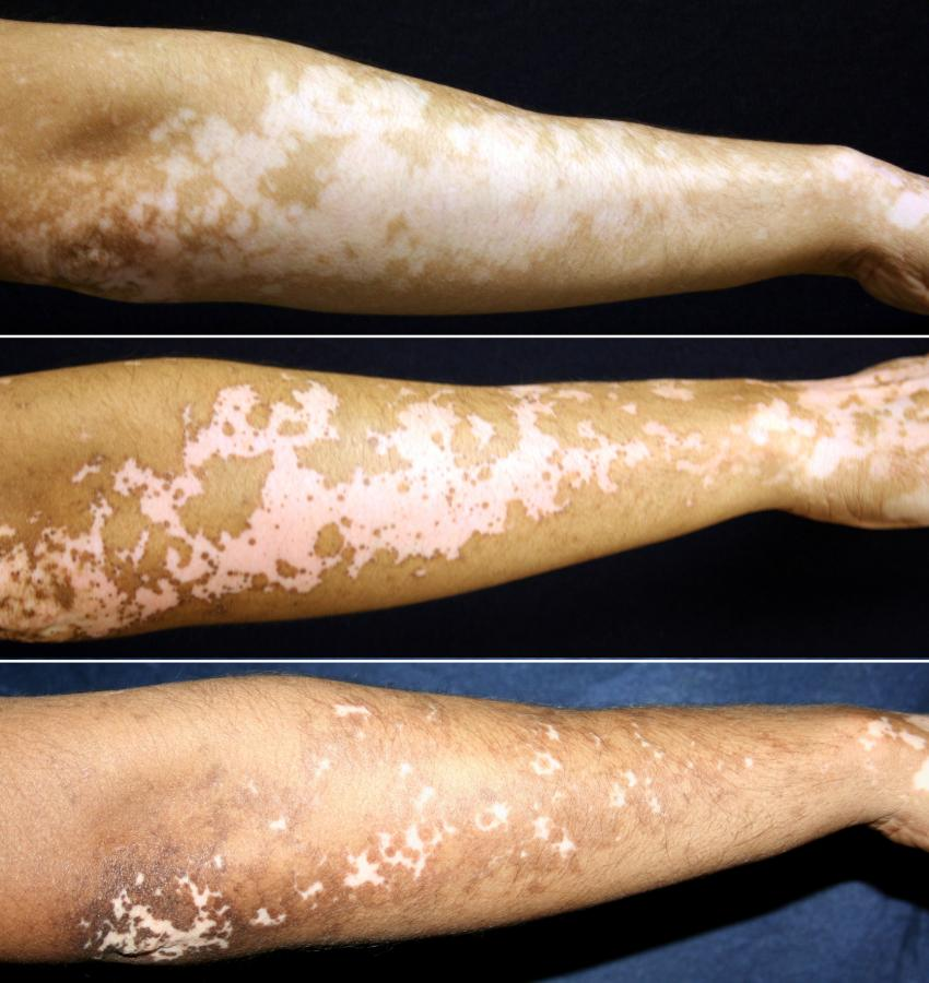 Vitiligo Treatment Holds Promise For Restoring Skin