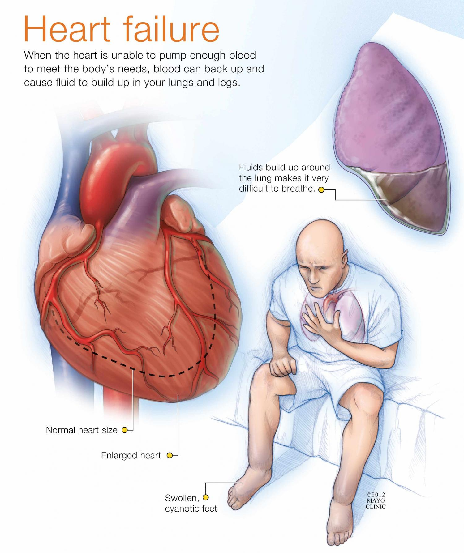 Common Medication For Heart Failure Patients Does Not