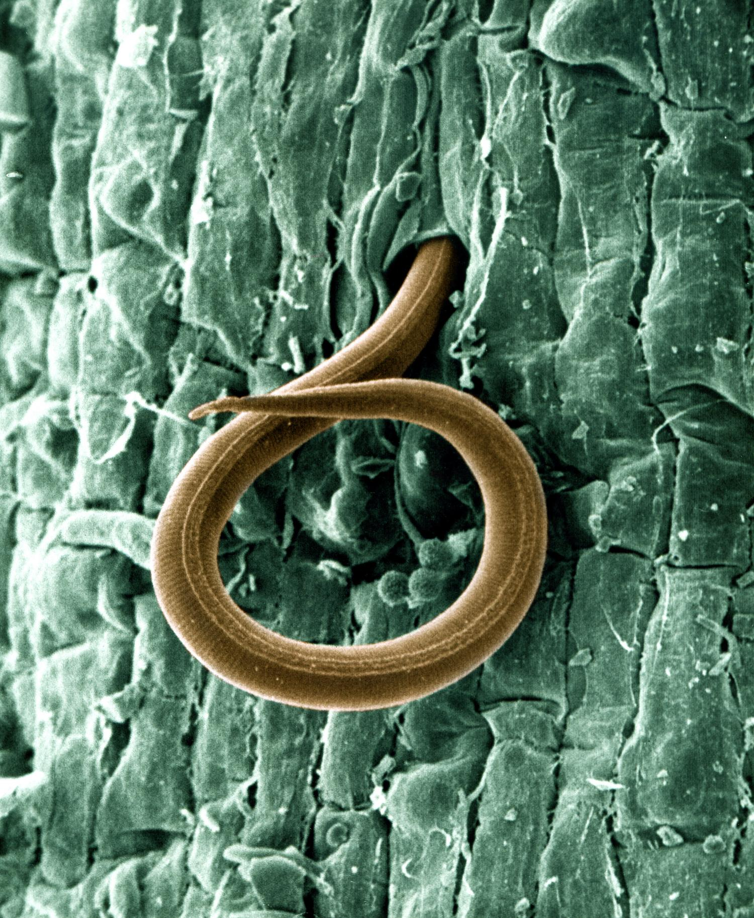 scientists discover new approach to managing parasitic roundworms