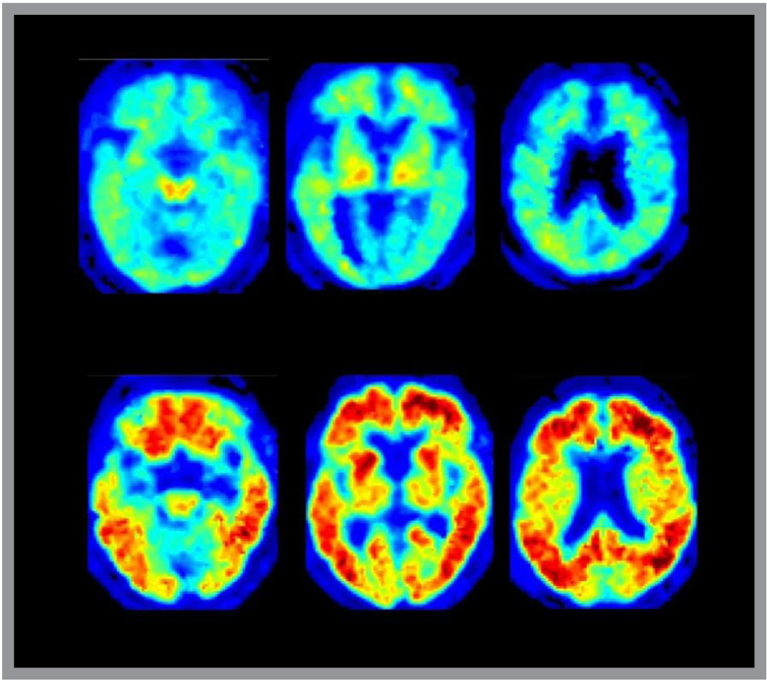 Watch How Accurate Are PET Scans for Alzheimers Diagnosis video