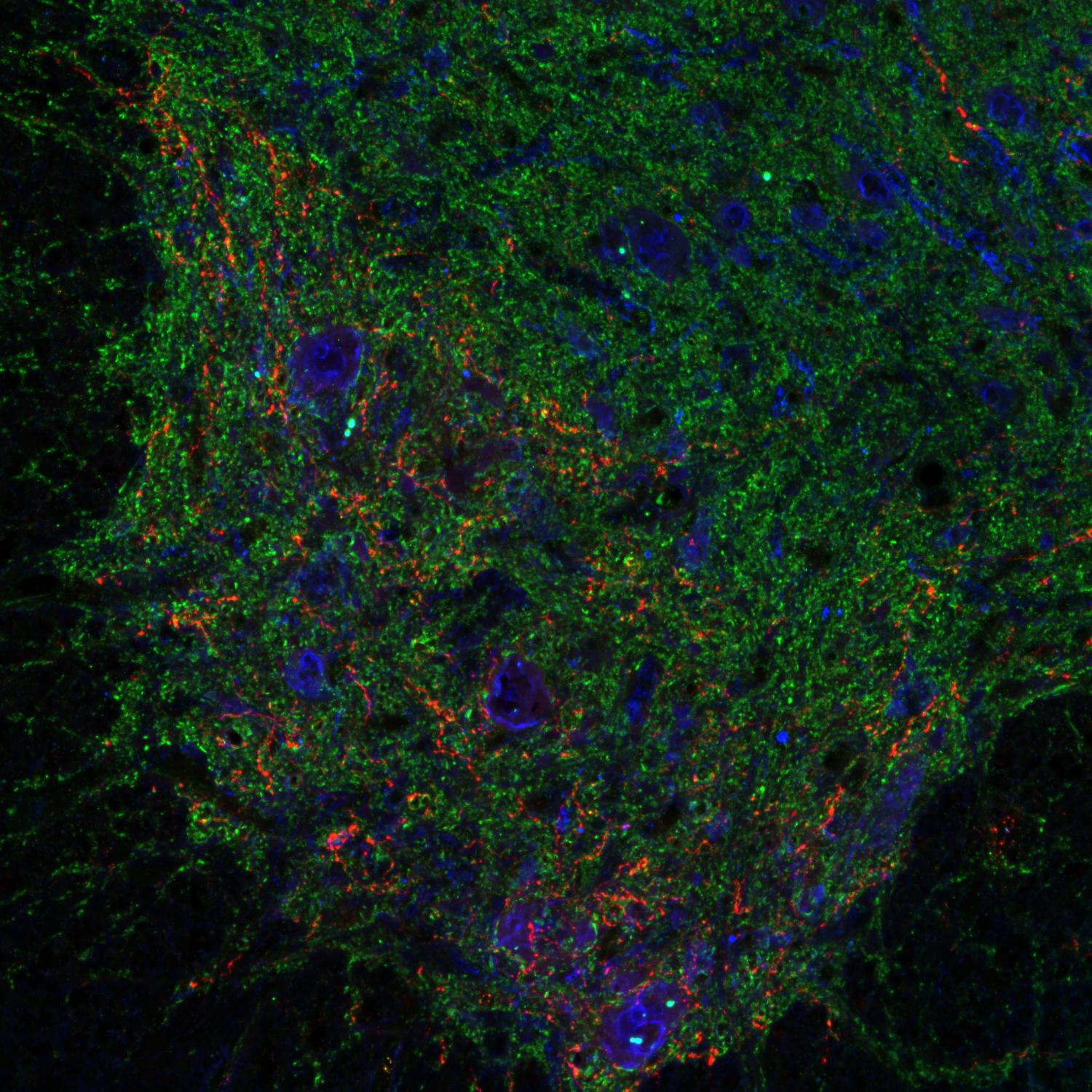 regeneration of neurons The science of neurogenesis suggests it's possible to create new neurons in the  hippocampus, which can improve a person's memory and.