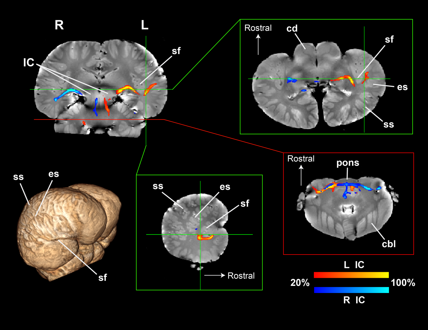 First Images Of Dolphin Brain Circuitry Hint At How They Sense Sound Wiring Diagrams Probabilistic Tractography In A Was Revealed Used Novel Technique Diffusion Tensor Imaging Dti Credit Image Via Gregory Berns