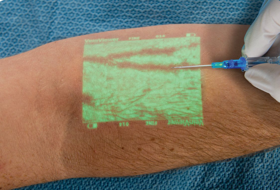 infrared light tech supports vein access procedures