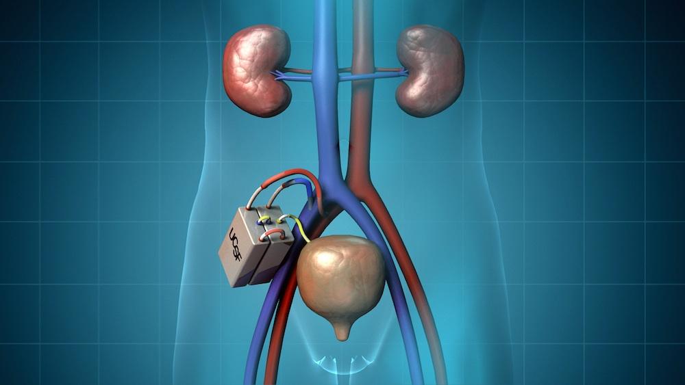Real Human Kidneys