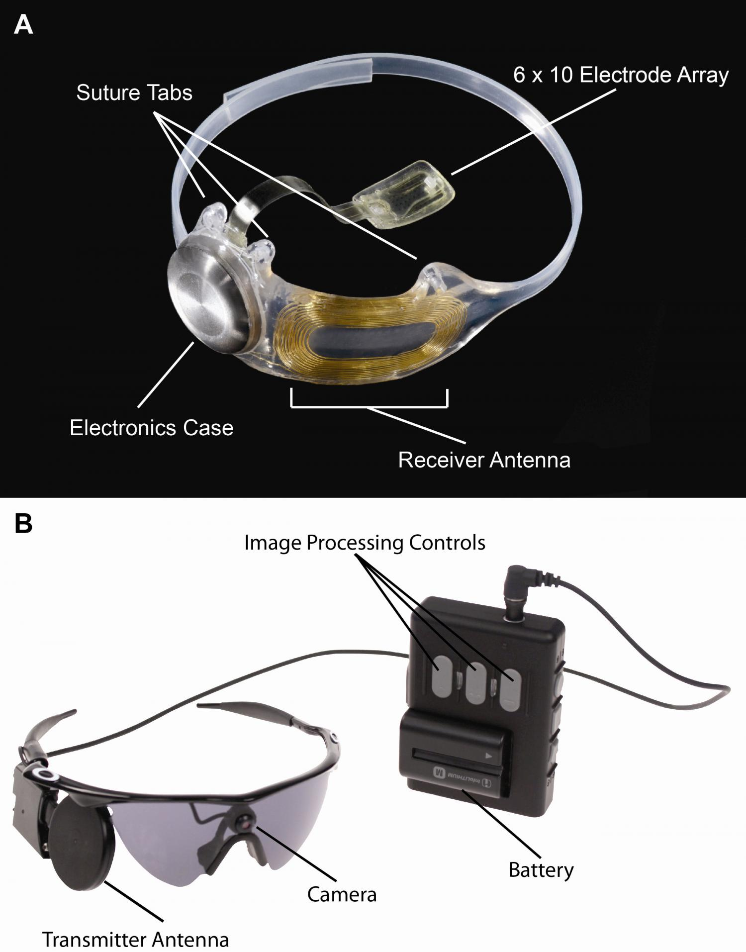 Bionic eye clinical trial results show longterm safety
