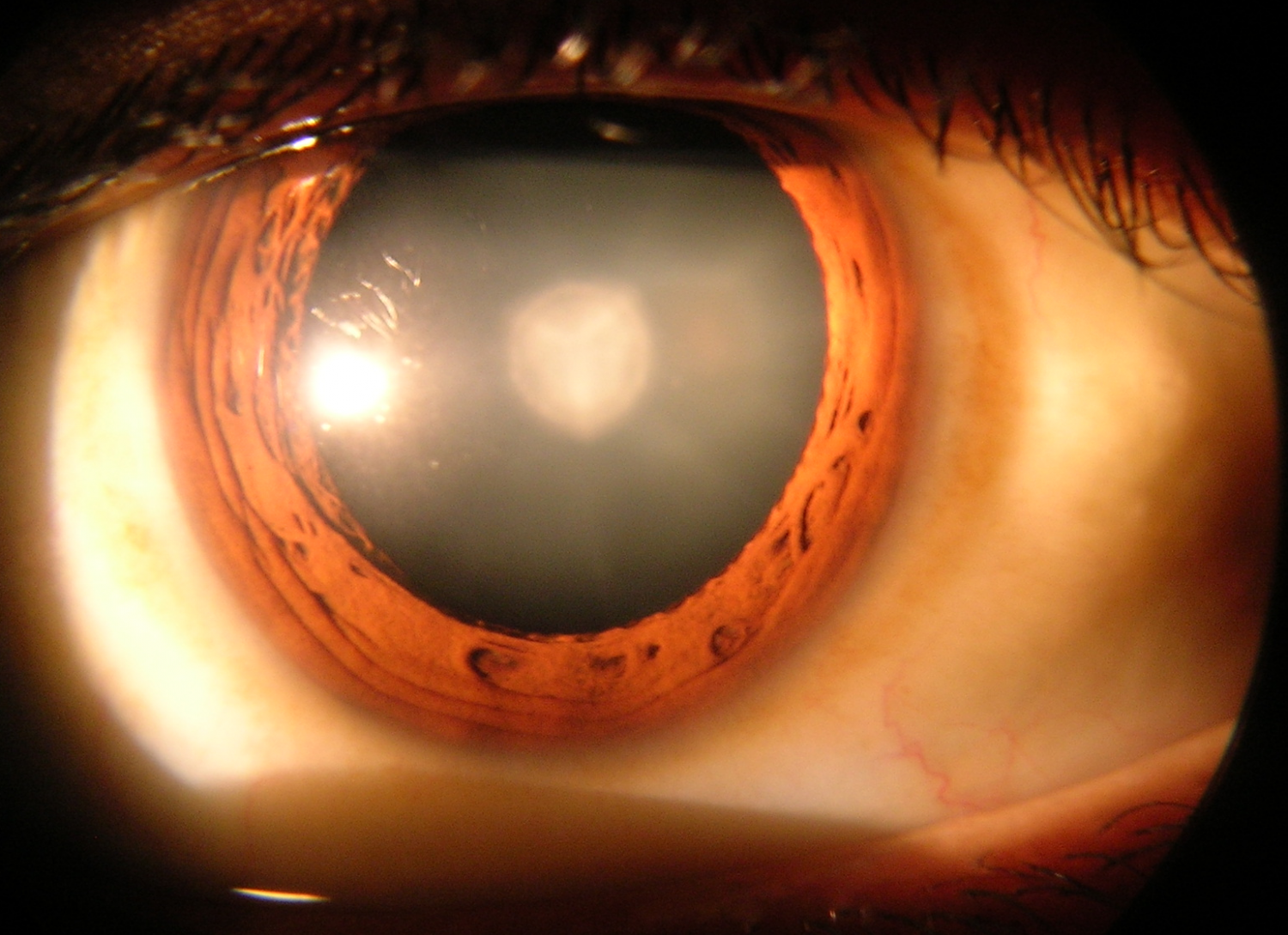 Stem Cells Regenerate Human Lens After Cataract Surgery