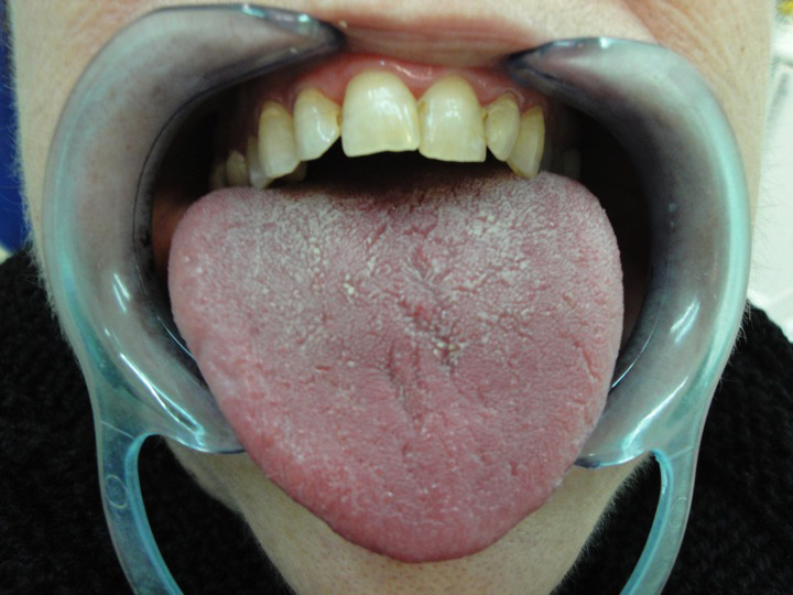 Dry Mouth Syndrom 68