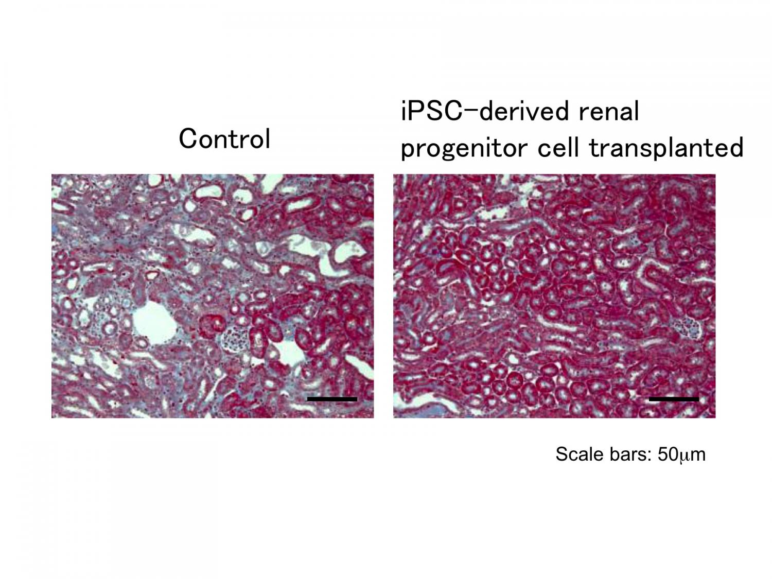 Induced Pluripotent Stem Cells Show Promise For Kidney Treatment