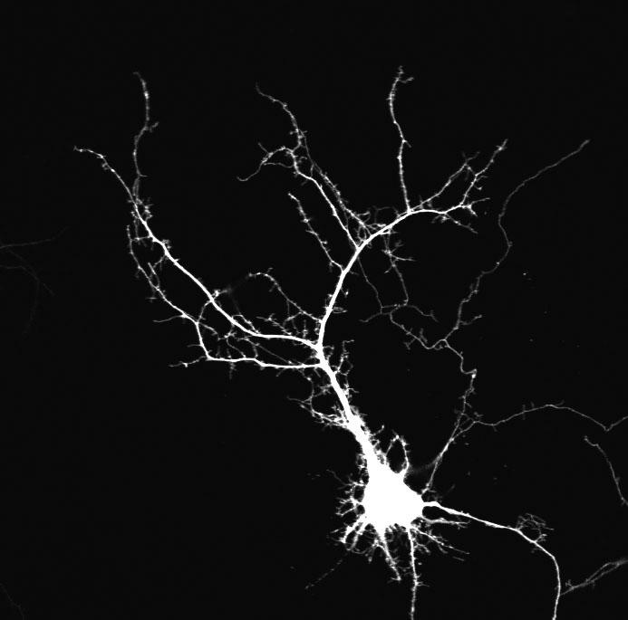 spontaneous activity shapes neuron development