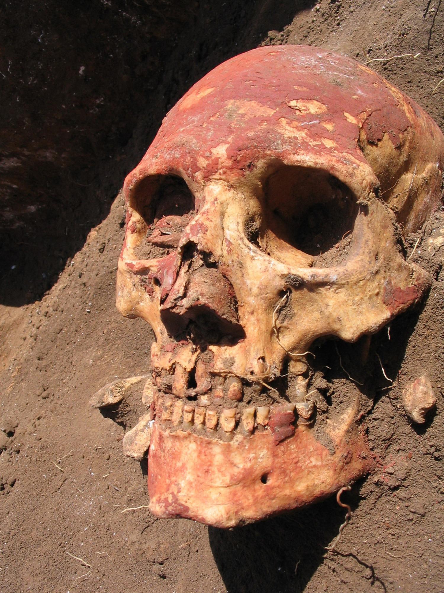 bubonic plague - photo #48