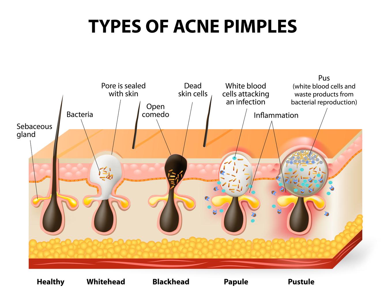 On the Horizon: an Acne Vaccine