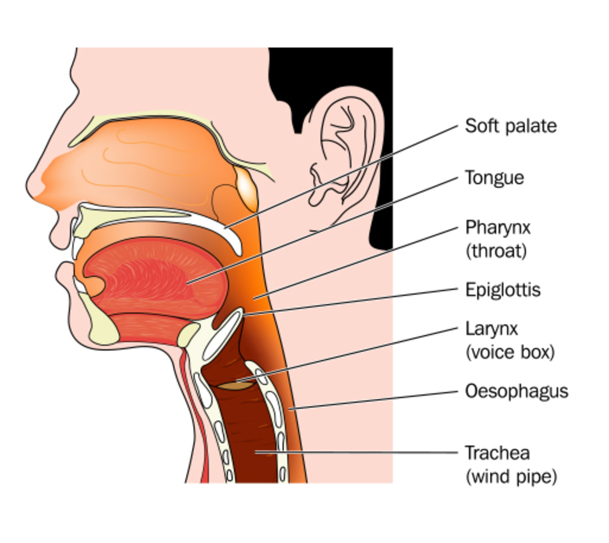 Sore throat black spot — img 9