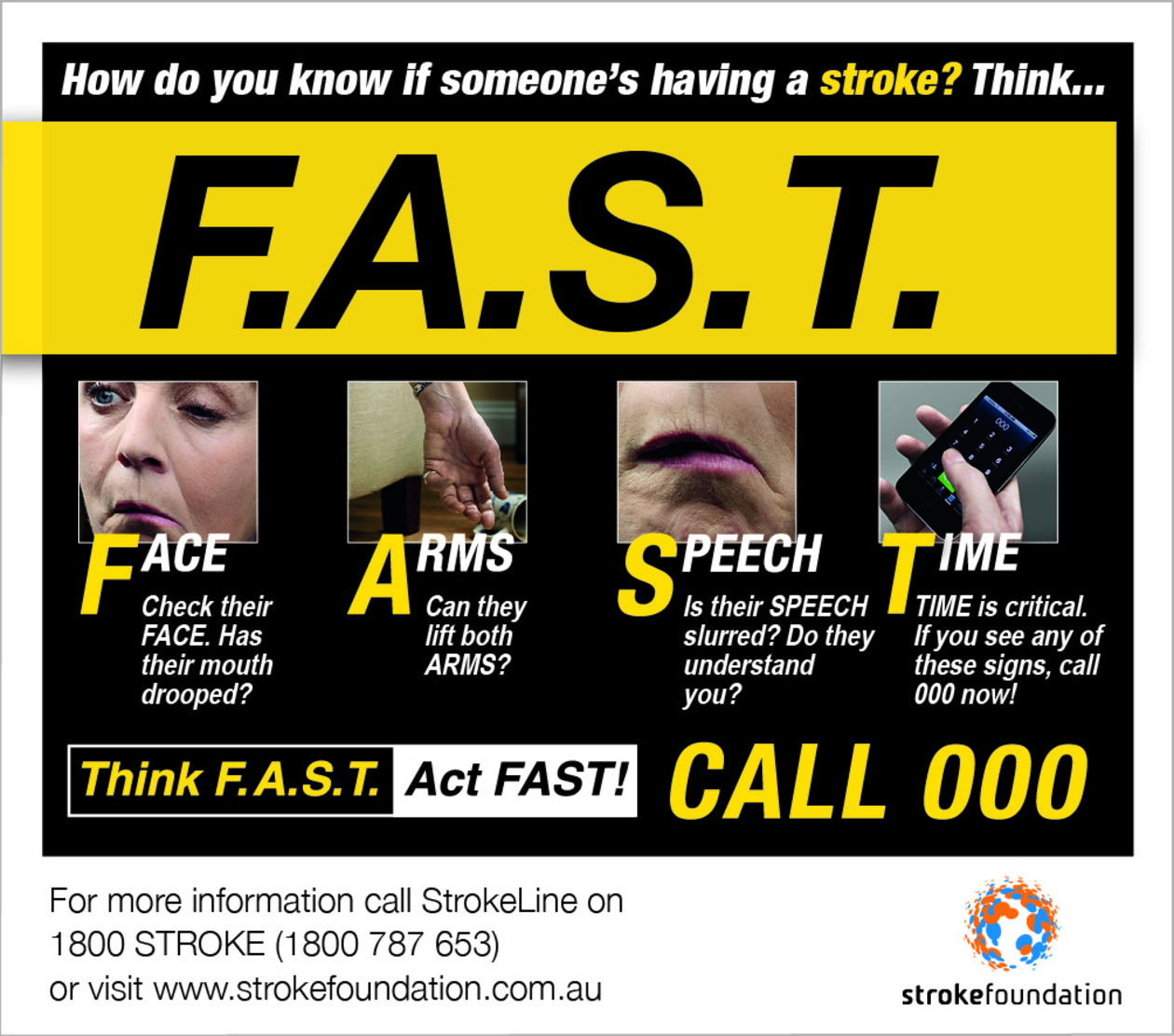 cva stroke information you should know Learn about the different types of stroke  make sure you know how to recognise the symptoms  charity information stroke association is a company limited.