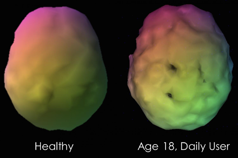 Конопли мозг после как восстановить голубой конопля сорт