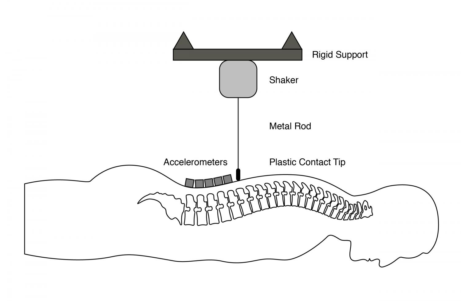 For the spine vibration technology offers alternative to mri a cross sectional view of spine vibration technology credit university of alberta pooptronica