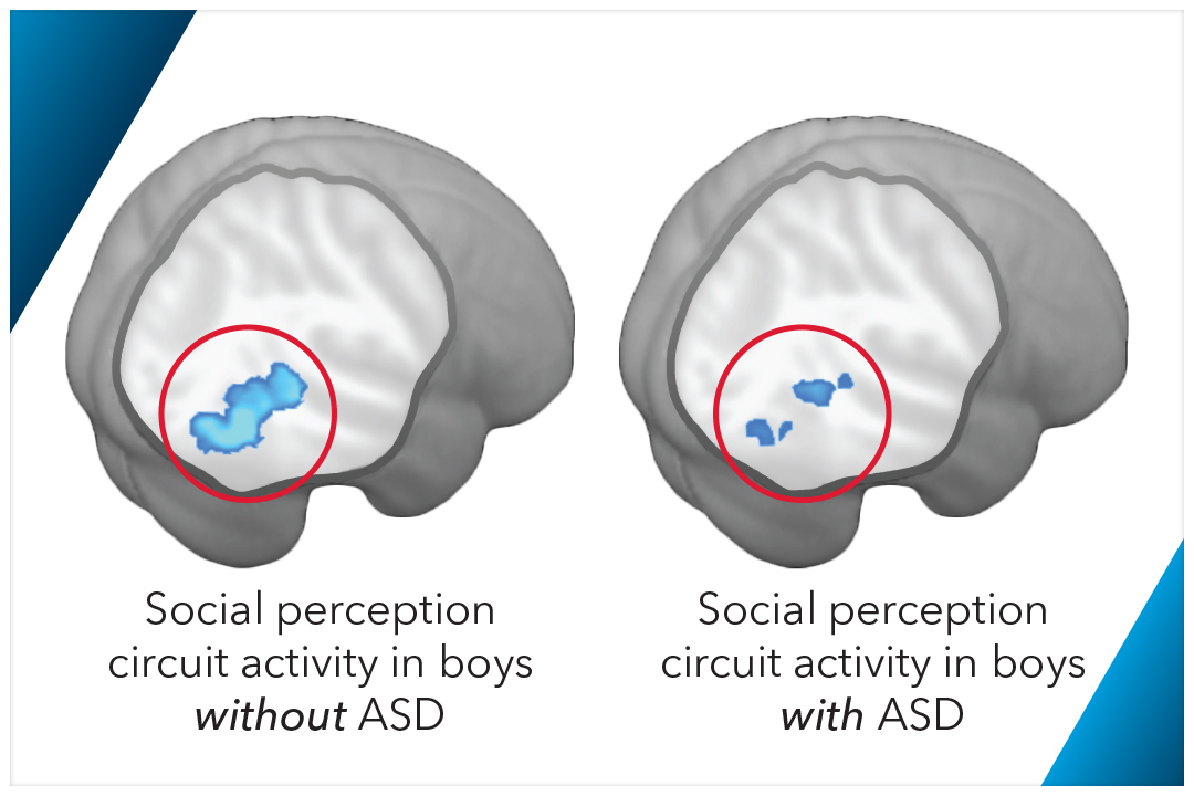brain function for autism In a recent training by dr daniel amen, he reviewed the typical findings of spect brain scans for persons with autism / asperger's the findings indicated that in.