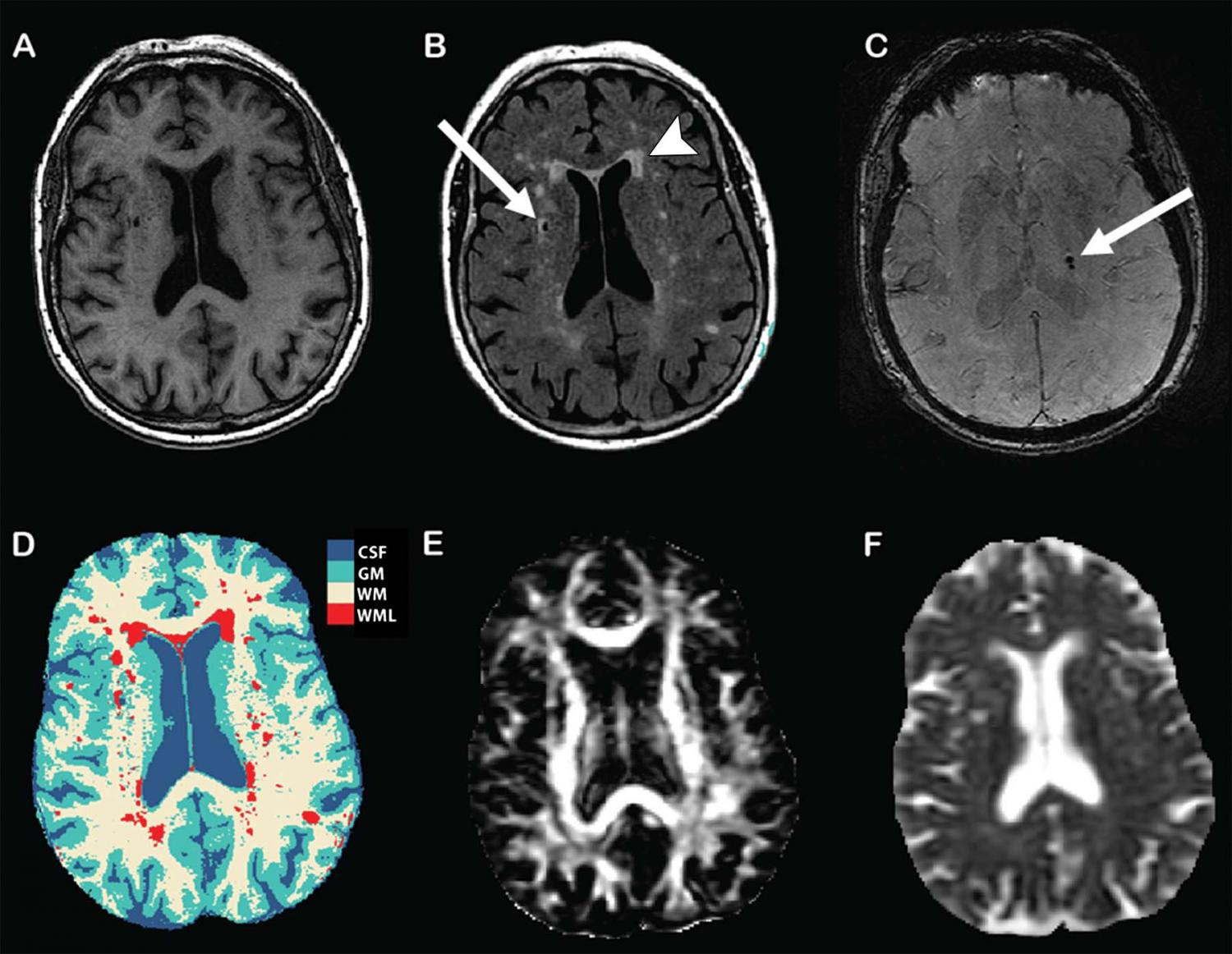 5 condition of brain damage Brain damage from cardiac  the mechanism of neuronal damage in hypoxic-ischemic encephalopathy  the term pvl should be restricted to the neonatal condition.