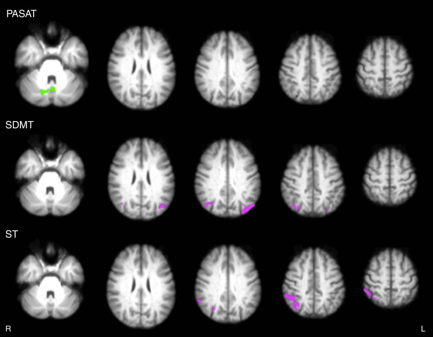 Games improve brain connections in multiple sclerosis patients video games improve brain connections in multiple sclerosis patients ccuart Images
