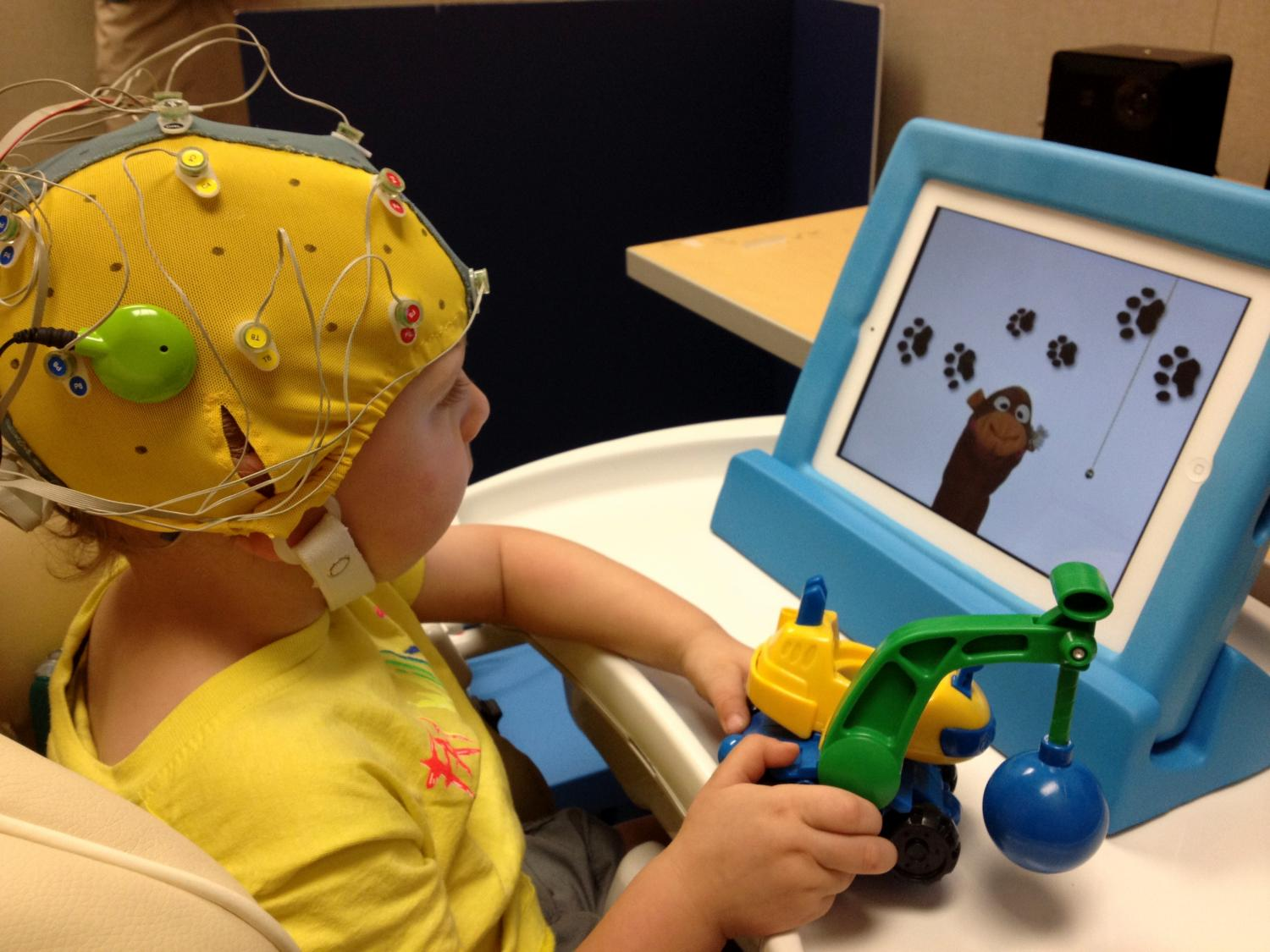 Toys For Epilepsy : Researchers study how cochlear implants affect brain circuits