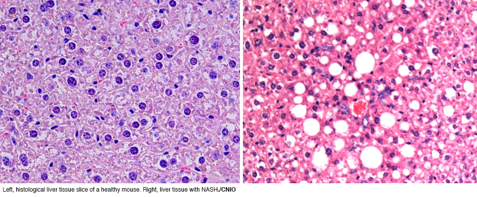 Researchers Describe Mechanisms That Trigger Nash And Liver Cancer