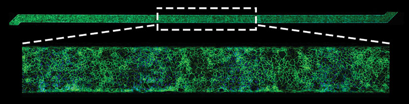 'Fixing' blood vessel cells to diagnose blood clotting ...