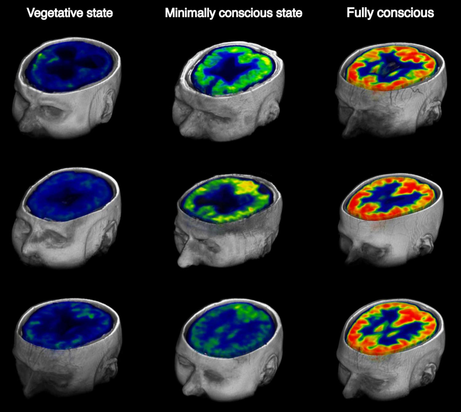 In Brain Injured Patients A Way To Measure Awareness Or